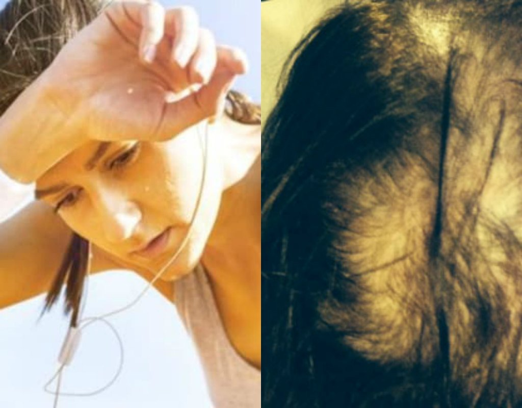 hair loss due to sweat