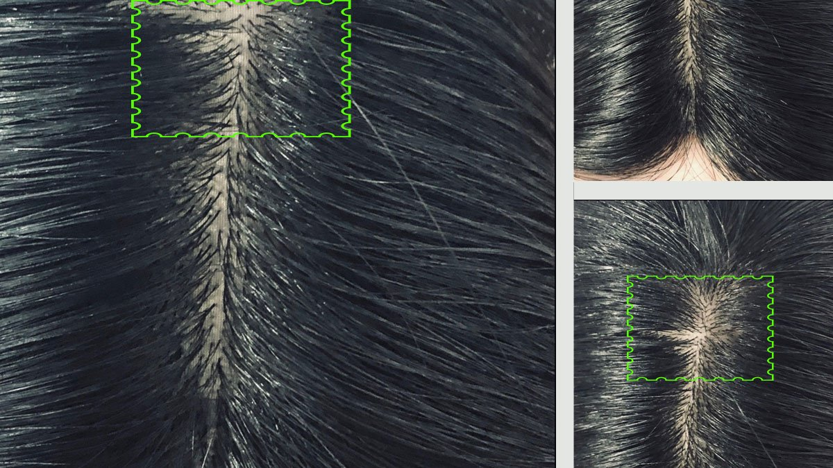 Hair thinning around parting