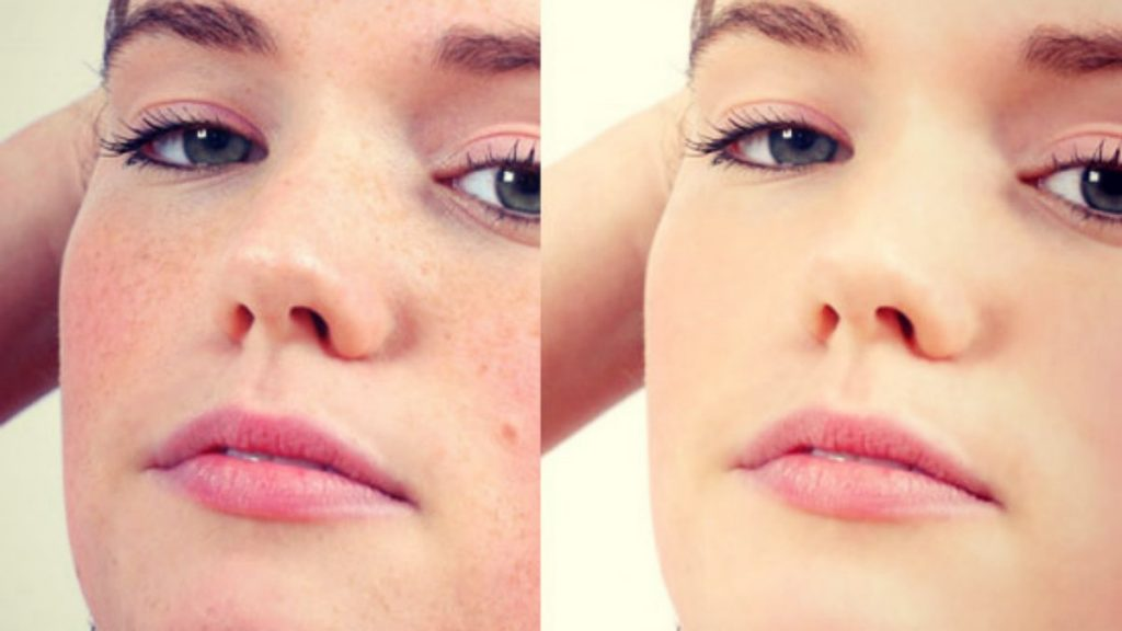 blemish free before after