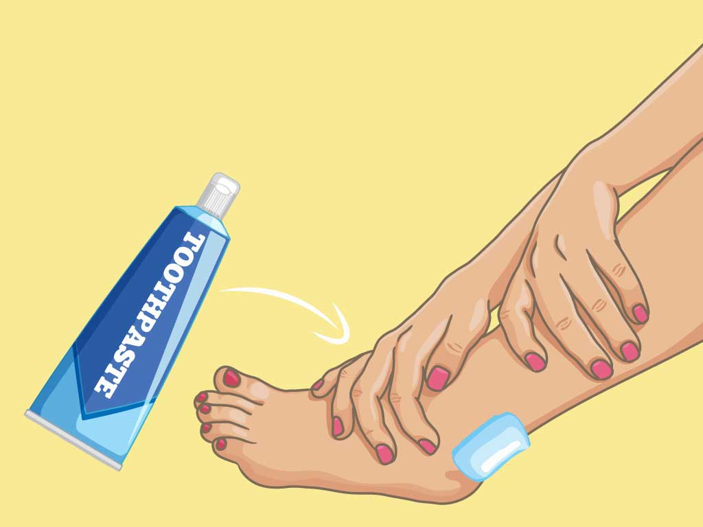 Homeremedy for shoe bit apply toothpaste on shoe bite