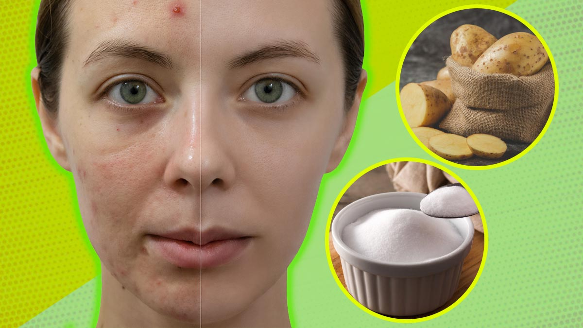 how to remove spots left behind by scars